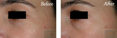 Botox - Before after gallery image 16
