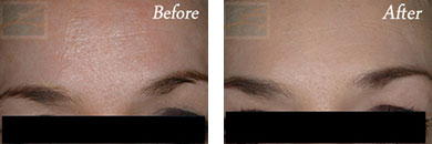 Botox - Before after gallery image 18