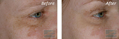 Botox - Before after gallery image 1