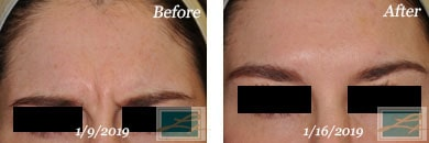 Fine Lines, Wrinkles & Folds - Before and After Case 43