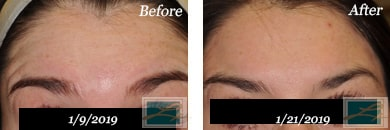 Fine Lines, Wrinkles & Folds - Before and After Case 44