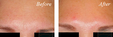 Botox - Before after gallery image 6