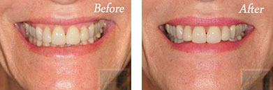 Botox - Before after gallery image 7