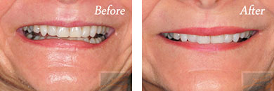 Botox - Before after gallery image 8