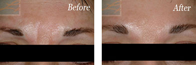 Botox - Before after gallery image 17