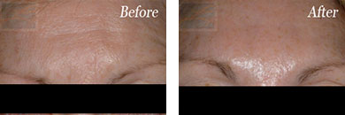Botox - Before after gallery image 9
