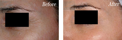 Botox - Before after gallery image 11