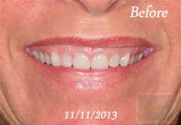 Botox New Orleans - Case 15, Before