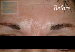 Botox New Orleans - Case 1, Before