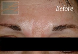 Dermatologist New Orleans - Botox, Before