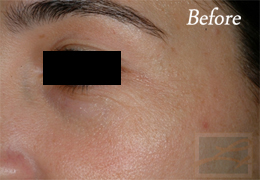 Botox New Orleans - Case 10, Before