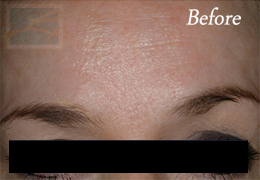 Botox New Orleans - Case 11, Before