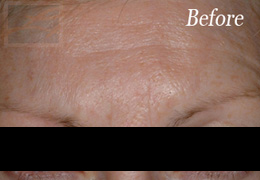 Botox New Orleans - Case 2, Before