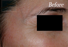 Botox New Orleans - Case 3, Before