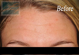 Botox New Orleans - Case 7, Before