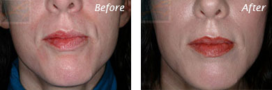 Sunken Cheeks - Before and After Case 5
