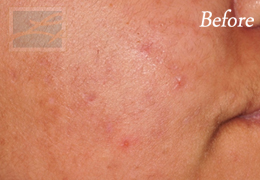 Chemical Peels New Orleans - Case 11, Before