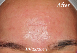 Chemical Peels New Orleans - Case 12, After