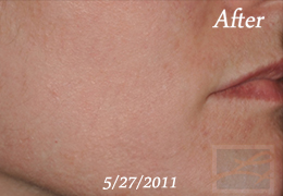 Chemical Peels New Orleans - Case 13, After