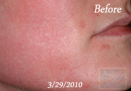 Chemical Peels New Orleans - Case 13, Before