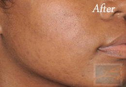 Chemical Peels New Orleans - Case 2, After