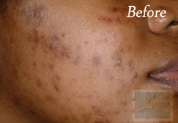Chemical Peels New Orleans - Case 2, Before