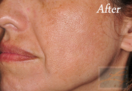 Chemical Peels New Orleans - Case 3, After