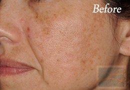 Chemical Peels New Orleans - Case 3, Before