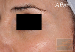 Chemical Peels New Orleans - Case 4, After