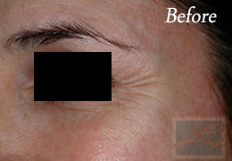 Chemical Peels New Orleans - Case 4, Before