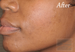 Chemical Peels New Orleans - Case 7, After