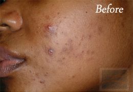 Chemical Peels New Orleans - Case 7, Before