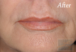 Chemical Peels New Orleans - Case 8, After