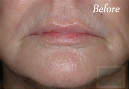 Chemical Peels New Orleans - Case 8, Before
