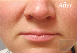 Chemical Peels New Orleans - Case 9, After