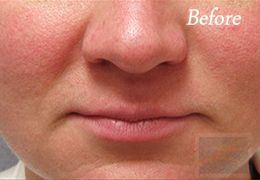 Chemical Peels New Orleans - Case 9, Before