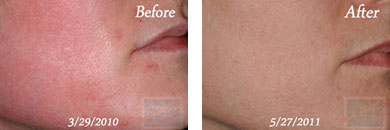 Chemical peels - Before after gallery image 1