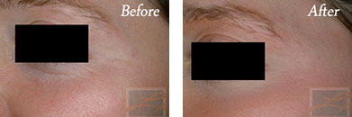Chemical peels - Before after gallery image 10