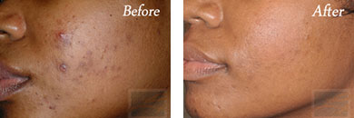 Chemical peels - Before after gallery image 11