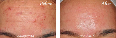 Acne & Acne Scarring - Before and After Case 6
