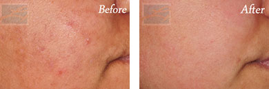 Chemical peels - Before after gallery image 3
