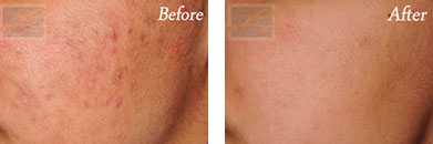 Chemical peels - Before after gallery image 4