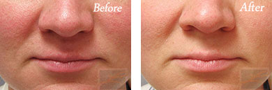Chemical peels - Before after gallery image 5
