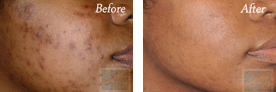 Chemical peels - Before after gallery image 7