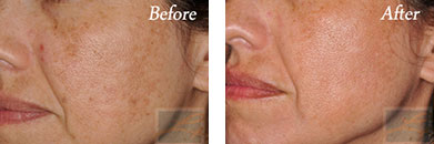 Chemical peels - Before after gallery image 8
