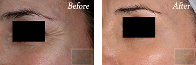 Chemical peels - Before after gallery image 9