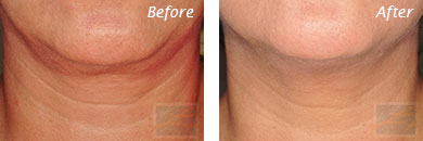Neck, Abdomen & Chest - Before and After Case 51