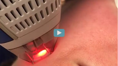 Clear+Brilliant mild laser resurfacing treatment - no pain, no downtime, just glowing results