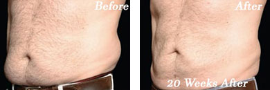 Coolsculpting - Before after gallery image 1