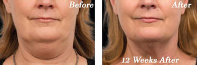 Coolsculpting - Before after gallery image 2